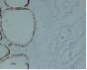 onderzoek_biopsie2